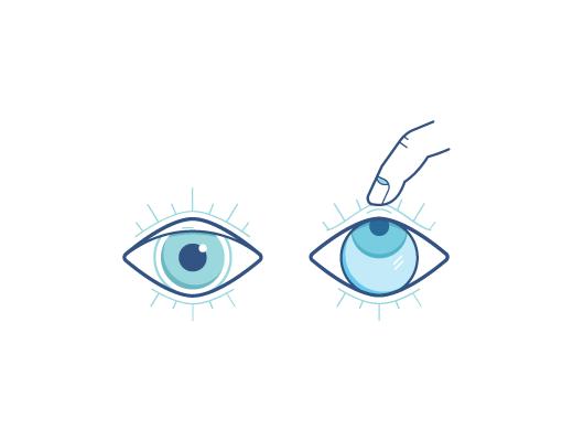 L'œil regarde vers le haut tandis que la lentille de contact est retirée avec le doigt.