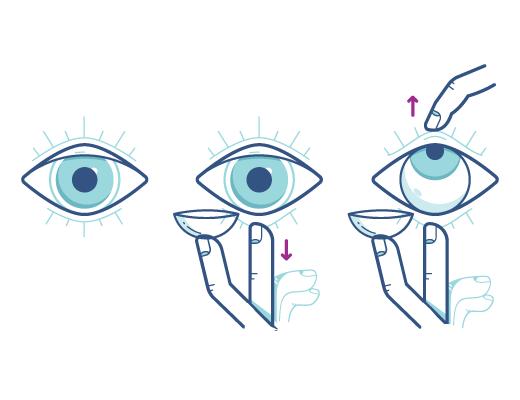 Suivez les instructions pour insérer la lentille de contact dans votre œil