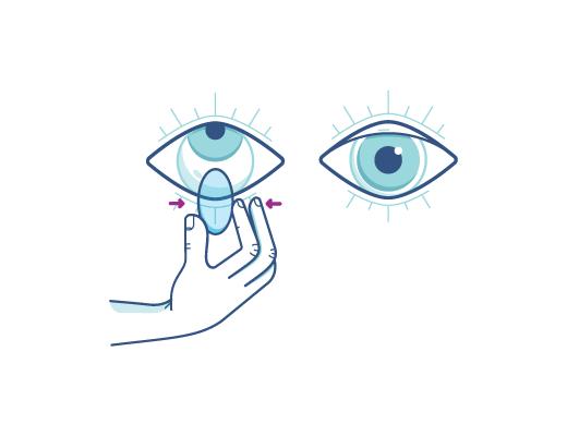 Schieben Sie Ihre Linse vorsichtig zusammen um die Kontaktlinse aus dem Auge zu entfernen