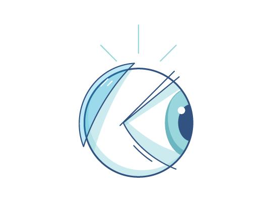 Illustration de lentilles de contact derrière un globe oculaire