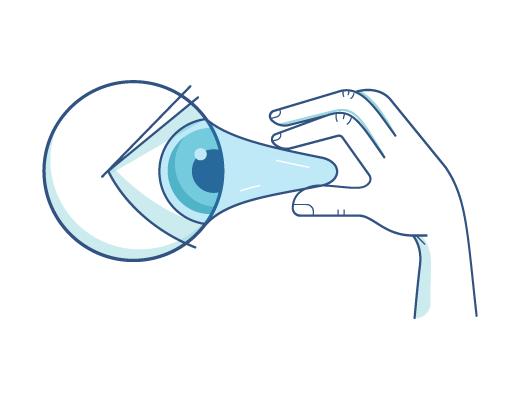 Extraire les lentilles de contact d'un œil