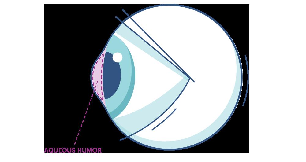 Illustration eines Auges mit Makierung der Vorderkammer
