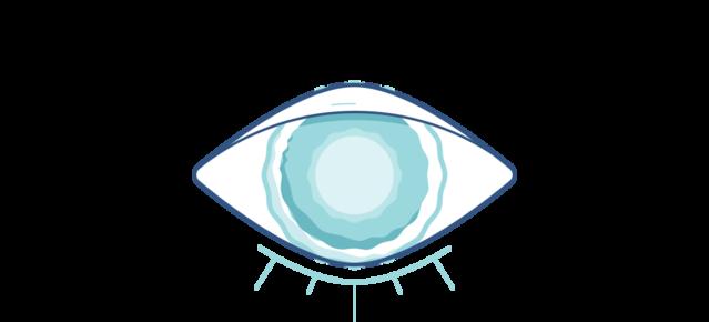 Illustration d'un œil nuageux