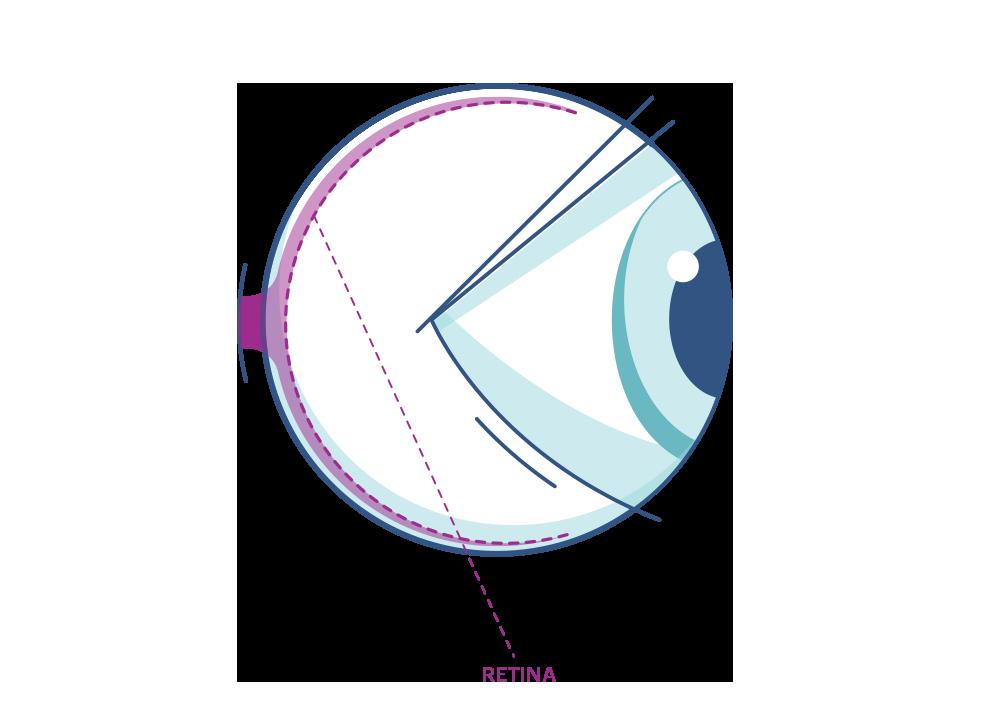 Illustration eines Auges mit Markierung der Netzhaut