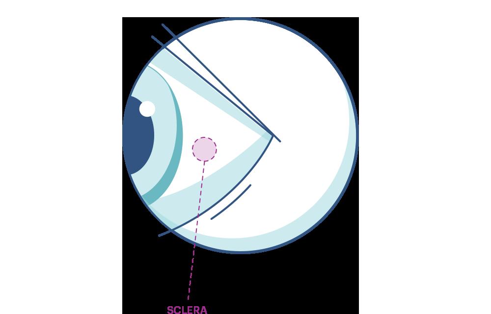 Das Auge: Aufbau und Funktionsweise | ACUVUE®